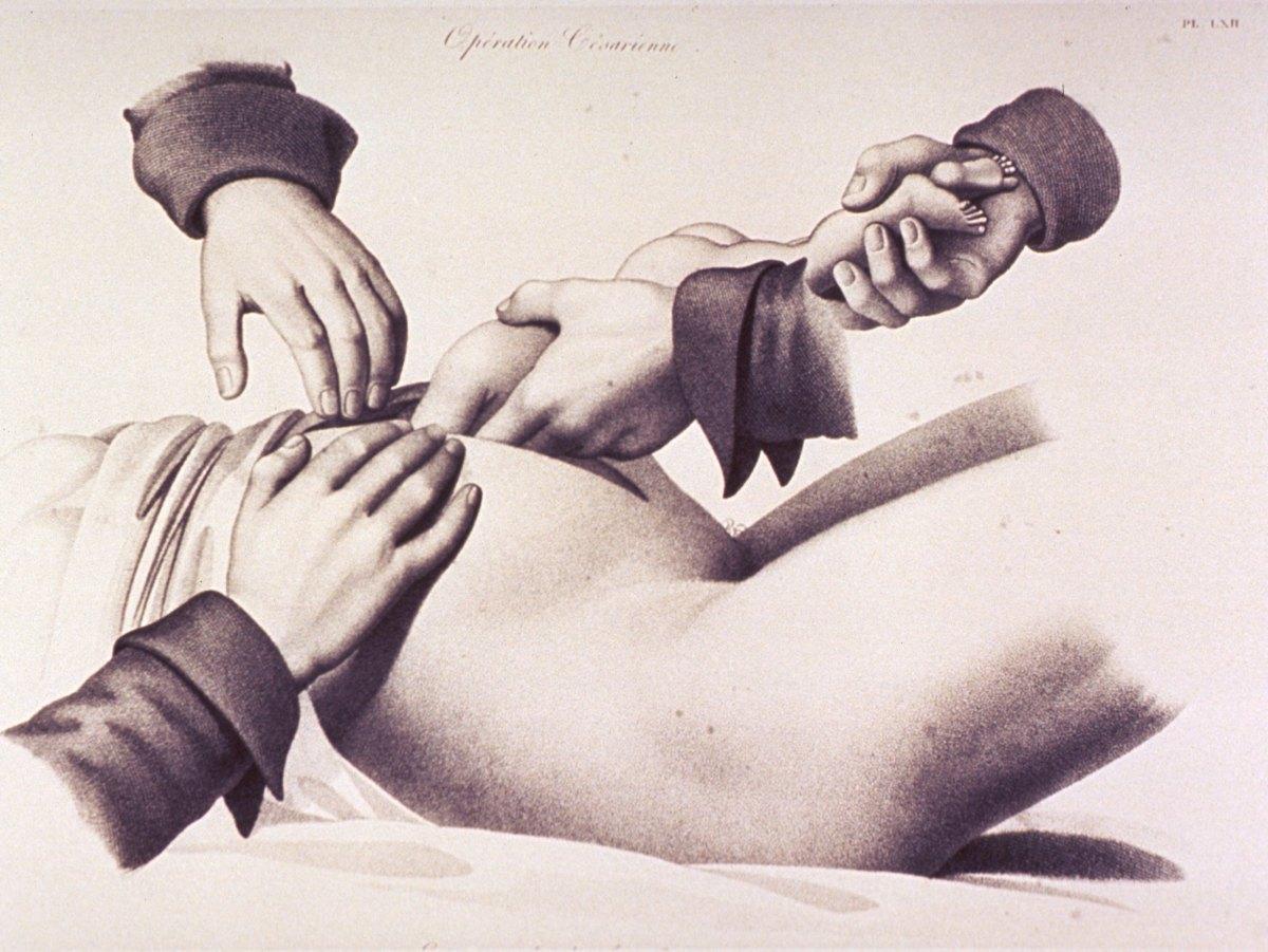Cardiac arrest in pregnancy: the perimortem cesareansection