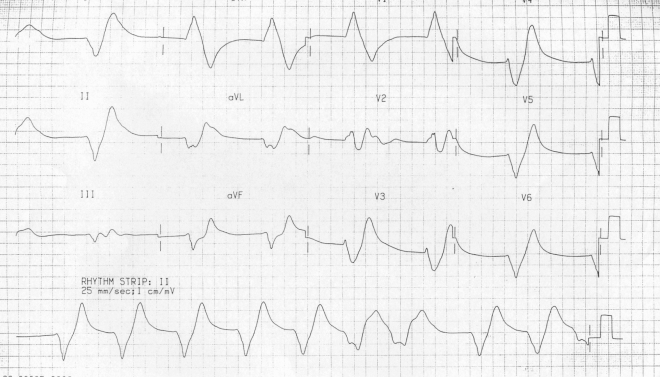 First10EM Hyperkalemia ECG K9.9 from Life in the Fastlane.jpg