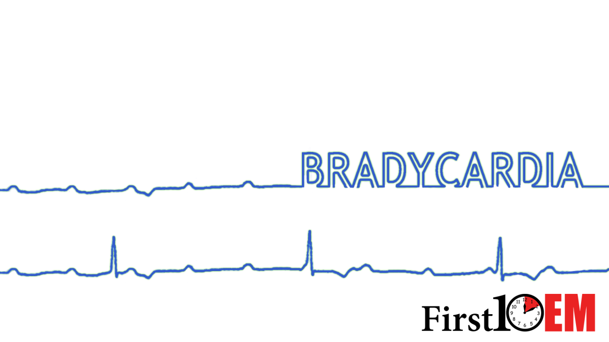 Managing unstable bradycardia